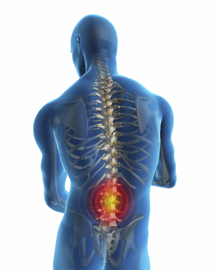Human back with visible pain by Langley 3PK Health Clinic Chiropractor
